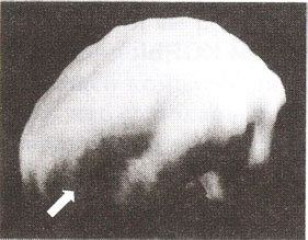 Префронтальная кора, дорсально-латеральная  префронтальная область (трехмерное изображение поверхности, вид сбоку).